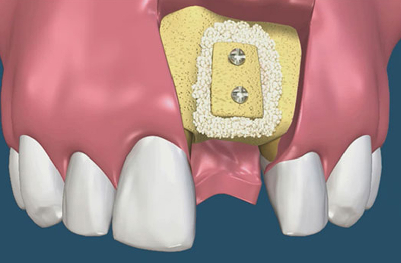 Block-Bone-Graft